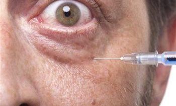 Göz Altı Morlukları İçin Işık Tedavisi | Işık Dolgusu | Riski Var Mı?