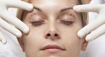 Göz Kapağı Düşüklüğü Nasıl Geçer? Göz Kapağı Düşüklüğü Ameliyatı